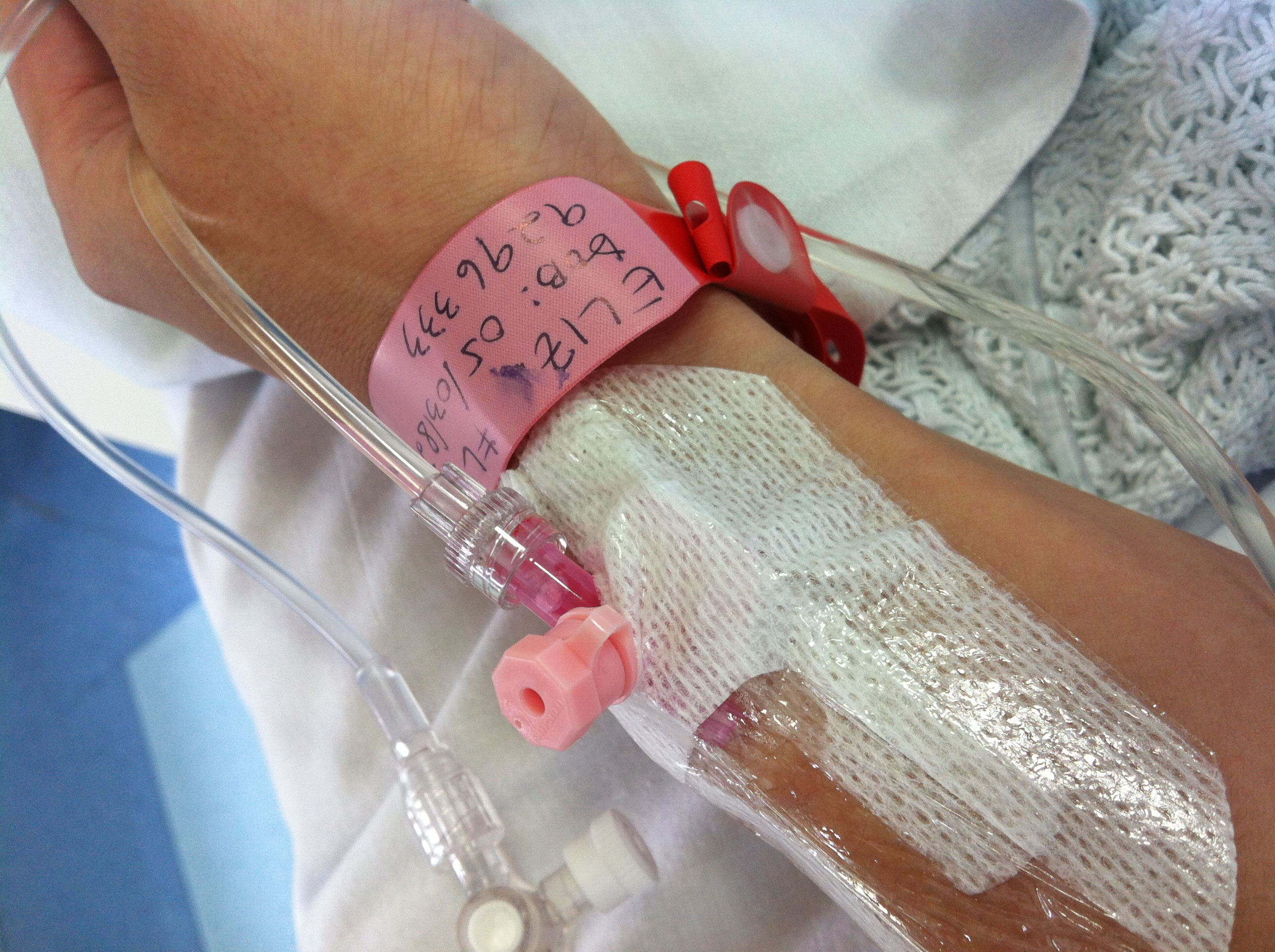 Going Under – Having General Anaesthetic